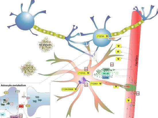 """Astrocyte Biomarkers in Alzheimer's disease"""