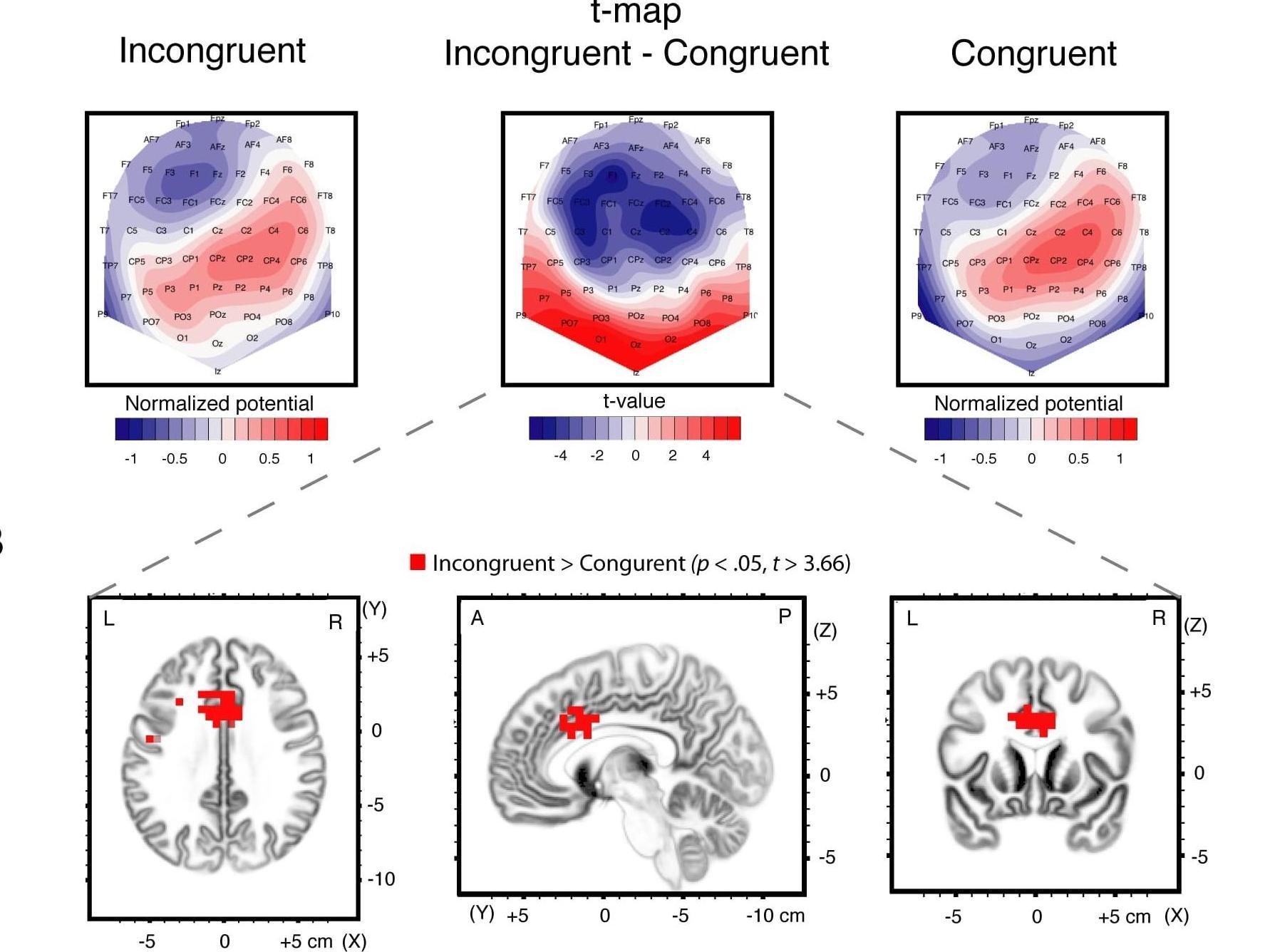 Choisir en situation de conflit: ce que nous révèle l'analyse de la dynamique cérébrale