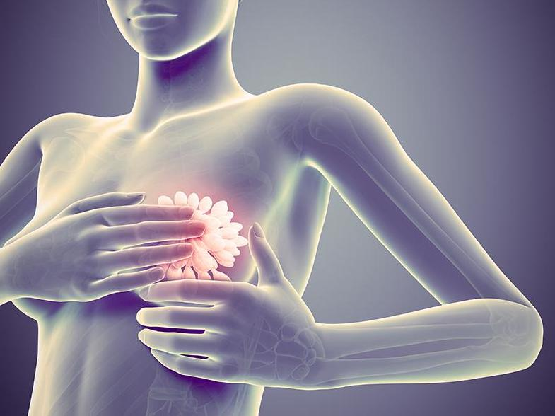 La mortalité par cancer du sein est globalement en baisse